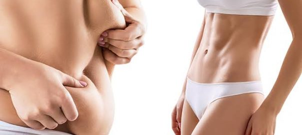 Tummy Tuck After Childbirth